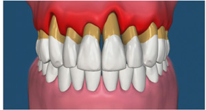 Periodontal Diseased Gums